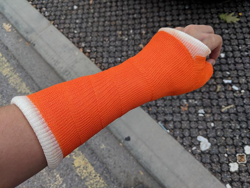 Stephen suffered a fractured wrist after he came off because of a pothole
