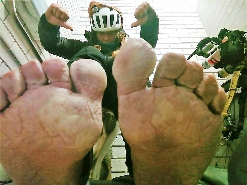 Jenny Graham's sore feet